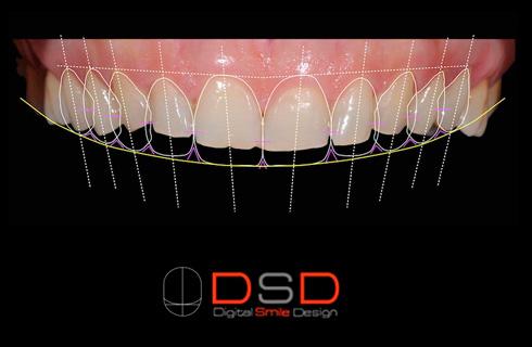 Estética dental Bonanova