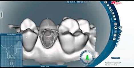Prótesis y rehabilitación oral Bonanova