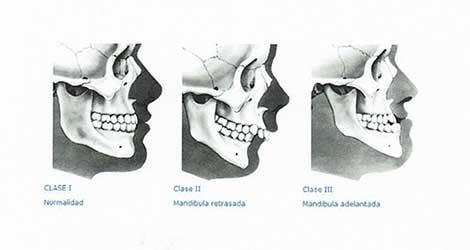 Ortodoncia Bonanova