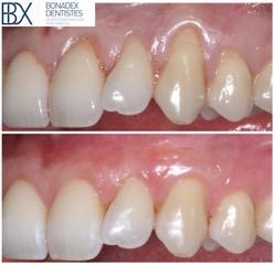 La Retracción De Las Encías O Recesión Gingival Bonadex Dentistas